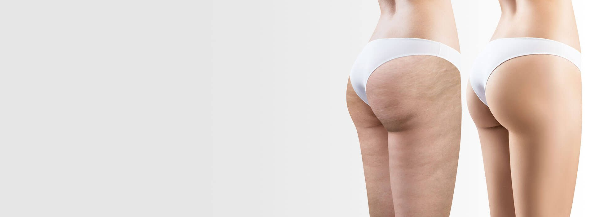 Cellulite - Clinique Medico-esthétique