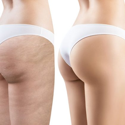 Corps - Traitement de la cellulite