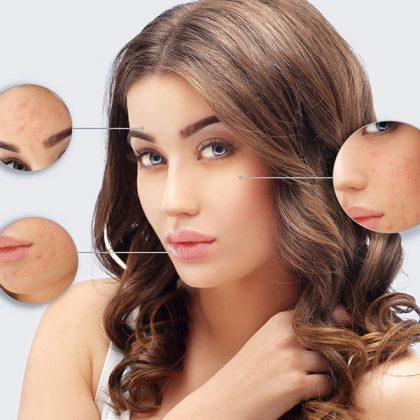 Visage - Zones du visage à traiter