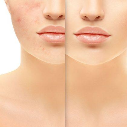 Visage - Cicatrices d'acné